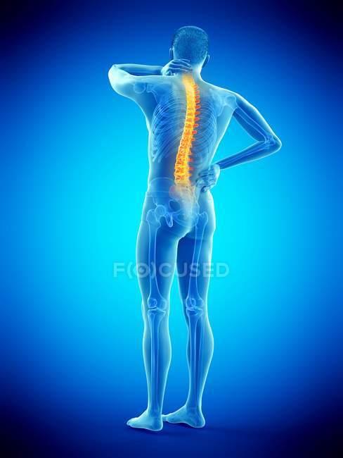Vista trasera del cuerpo masculino con dolor de espalda, ilustración conceptual . - foto de stock