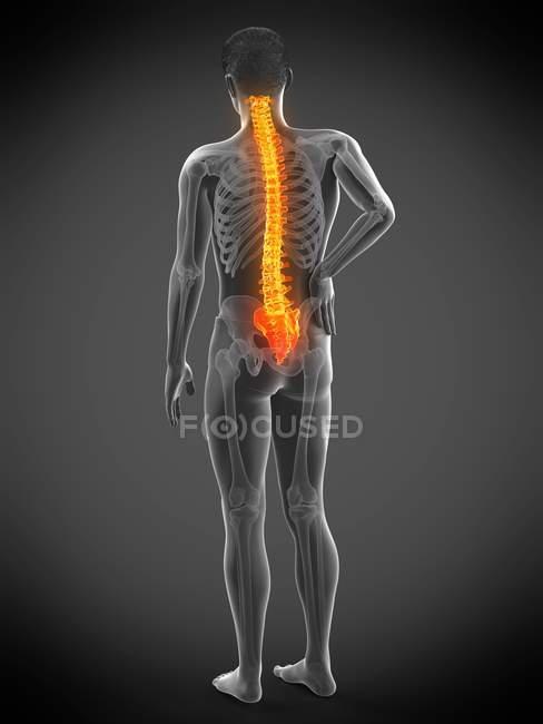 Silueta masculina con dolor de espalda sobre fondo gris, ilustración conceptual . - foto de stock