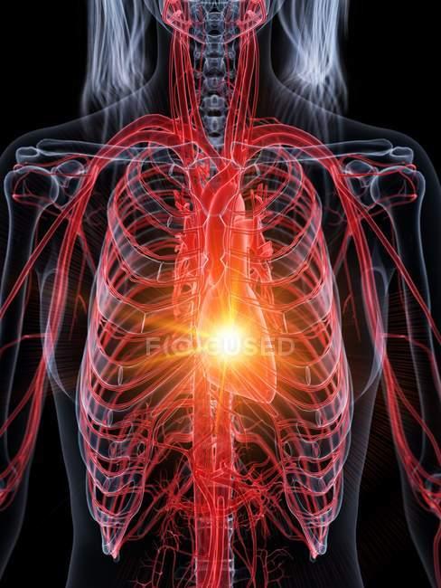 Ataque cardíaco en el cuerpo humano, ilustración conceptual . - foto de stock