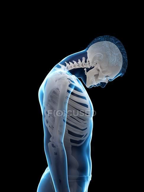 Silueta masculina que muestra anatomía de lesión en el cuello, ilustración digital . - foto de stock