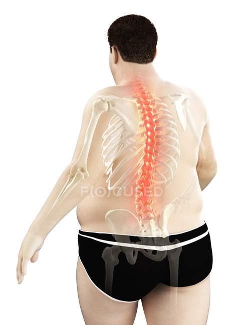 Cuerpo masculino obeso con dolor de espalda, ilustración digital . - foto de stock