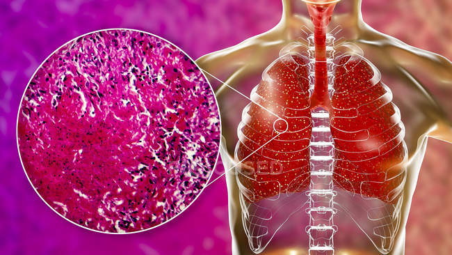 Malattia ausiliaria della tubercolosi nei polmoni, illustrazione digitale e micrografo leggero . — Foto stock