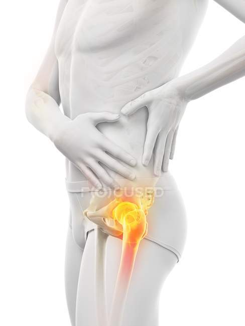 Абстрактний силует самця з видимим болем стегна, цифровий приклад. — стокове фото