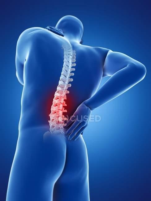 Silueta de cuerpo masculino con dolor de espalda en vista de ángulo bajo, ilustración digital . - foto de stock
