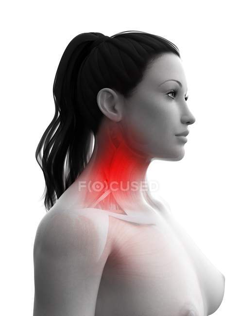 Abstract woman body with neck pain, conceptual computer illustration. — Stock Photo