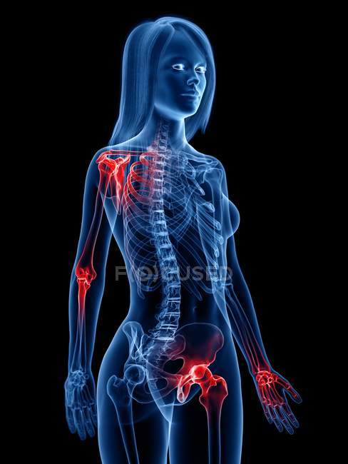 Articulations douloureuses dans le corps féminin, illustration conceptuelle . — Photo de stock