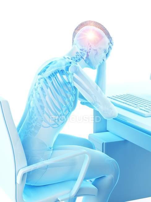Ilustración conceptual del trabajador de oficina abstracto con dolor de cabeza en el lugar de trabajo . - foto de stock