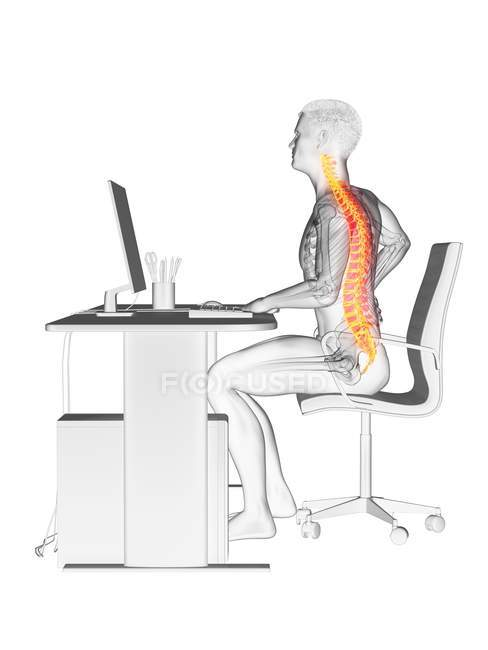 Male office worker with back pain, conceptual illustration. — Stock Photo