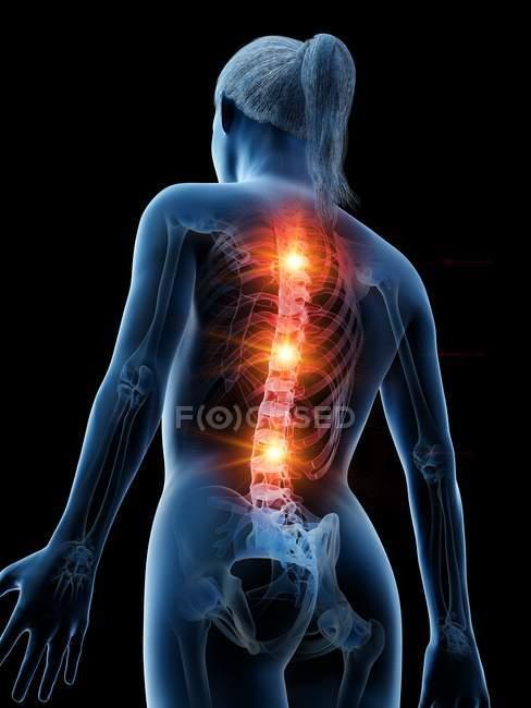 Silueta femenina con dolor de espalda brillante, ilustración digital conceptual . - foto de stock