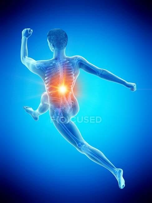 Männliche Läufersilhouette mit Rückenschmerzen im Hochwinkel, konzeptionelle Illustration. — Stockfoto