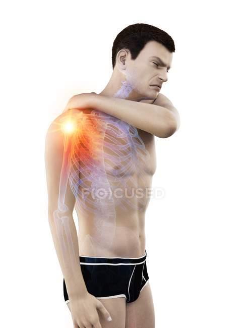 Silueta del hombre con dolor en el hombro, ilustración conceptual . - foto de stock