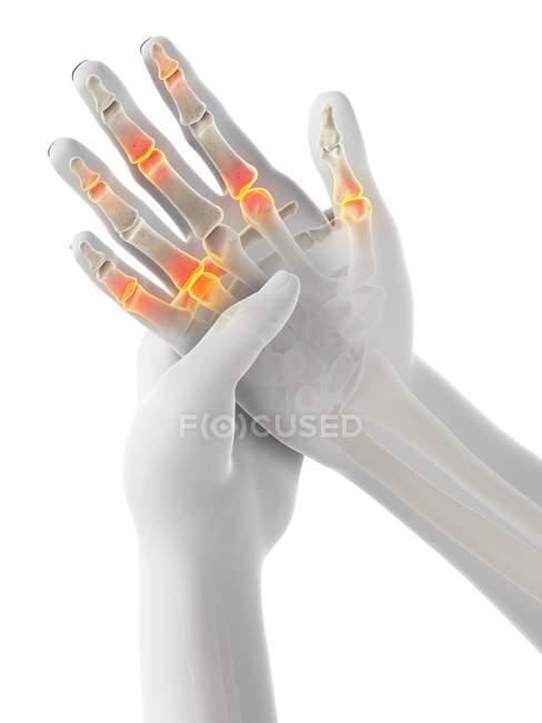 Manos humanas abstractas con dolor en los dedos, ilustración conceptual . - foto de stock