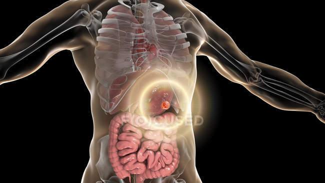 Tratamiento del cáncer de estómago humano, ilustración conceptual por computadora . - foto de stock