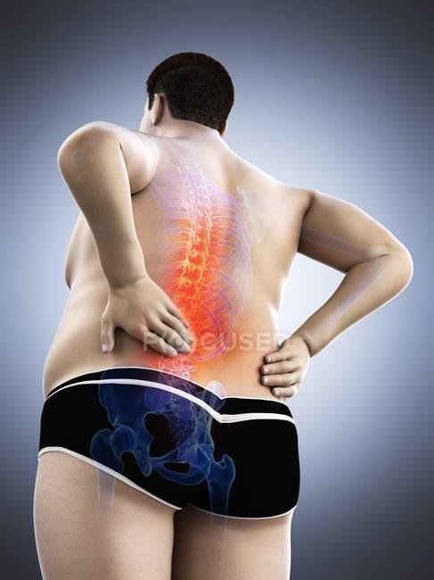 Cuerpo masculino obeso con dolor de espalda en vista de ángulo bajo, ilustración digital . - foto de stock
