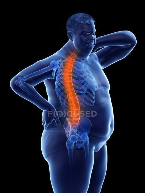 Cuerpo masculino obeso con dolor de espalda, ilustración conceptual . - foto de stock