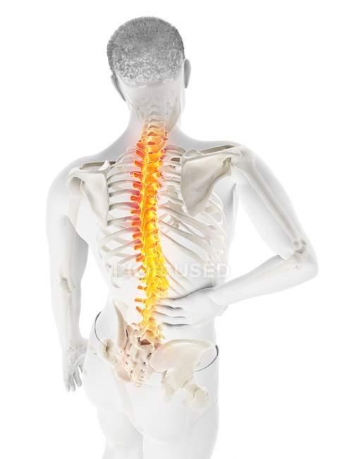 Cuerpo masculino con dolor de espalda en vista de ángulo alto, ilustración conceptual . - foto de stock