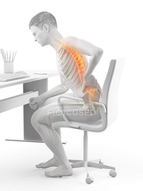 Sentado en el escritorio silueta de trabajador de oficina con dolor de espalda, ilustración conceptual . - foto de stock