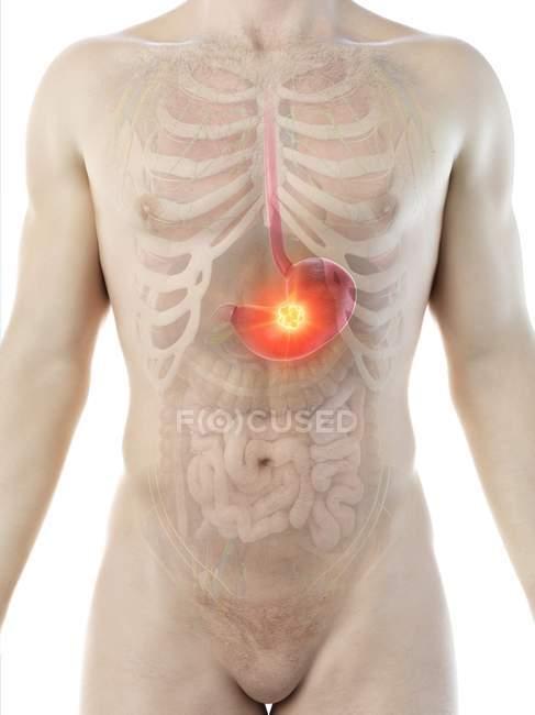 Рак шлунка в абстрактному чоловічому тілі, цифровий приклад. — стокове фото