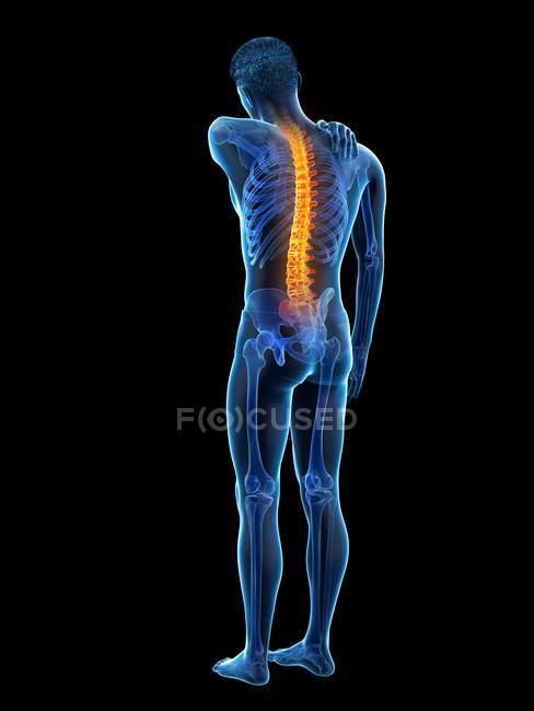Боль в спине, концептуальная иллюстрация. — стоковое фото