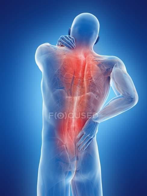 Cuerpo masculino con dolor de espalda sobre fondo azul, ilustración digital . - foto de stock