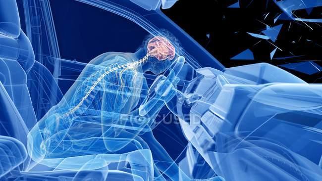 Ilustración de rayos X del riesgo de lesiones cerebrales durante un accidente de tráfico frontal, ilustraciones digitales . - foto de stock