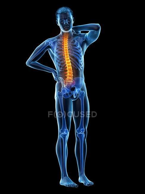 Cuerpo masculino con dolor de espalda sobre fondo negro, ilustración conceptual . - foto de stock