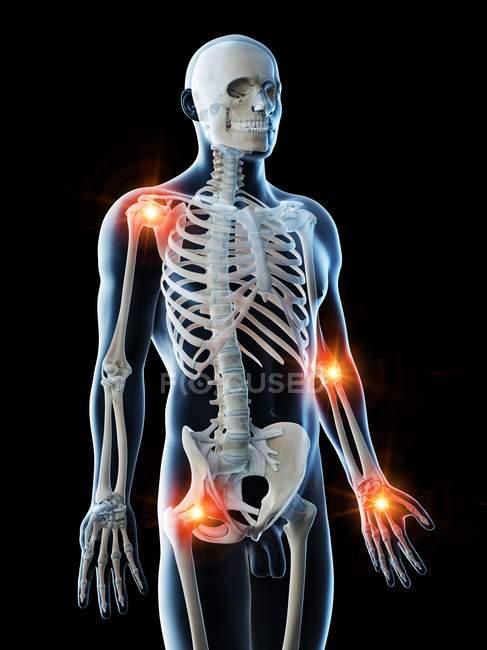 Cuerpo masculino abstracto con lugares de dolor articular, ilustración digital conceptual . - foto de stock