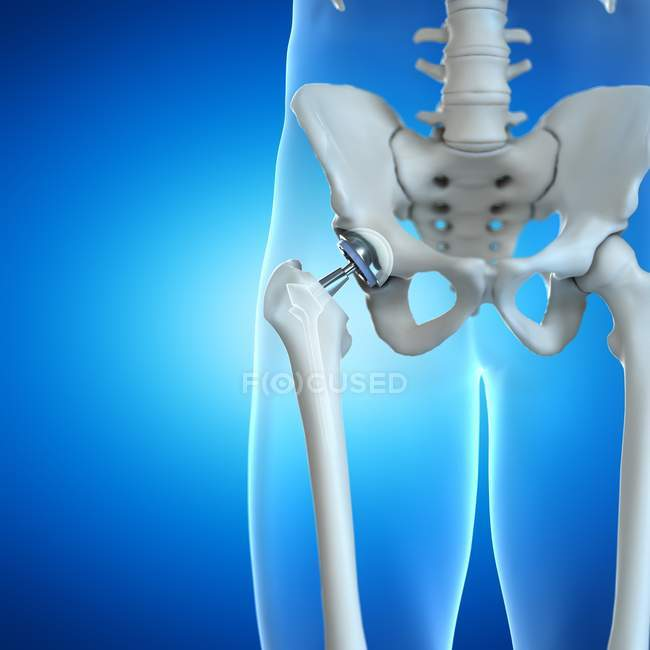Ortopedia reemplazo de cadera sobre fondo azul, ilustración digital . - foto de stock