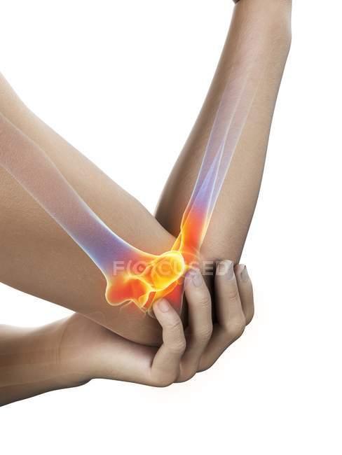 Primer plano del cuerpo humano con dolor de codo, ilustración digital . - foto de stock
