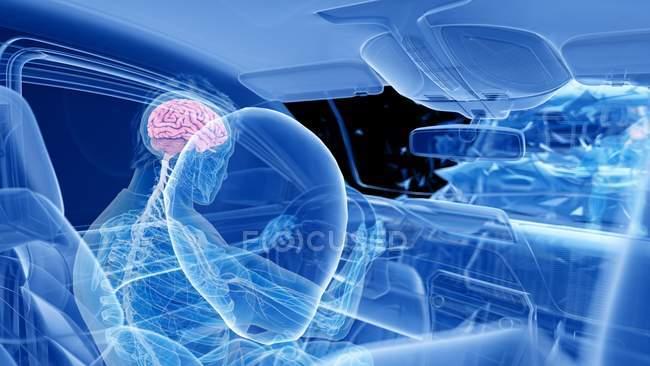 Рентгеновская иллюстрация риска черепно-мозговой травмы при лобовой автокатастрофе, цифровые произведения искусства . — стоковое фото