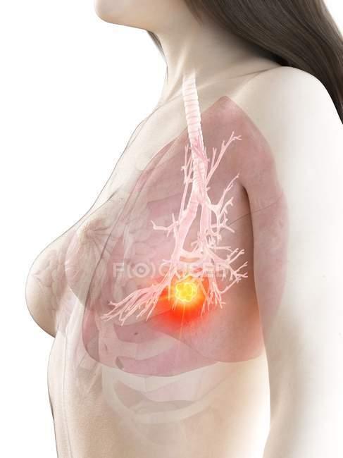 Cancer du poumon dans le corps réaliste féminin modèle 3d, illustration conceptuelle par ordinateur . — Photo de stock