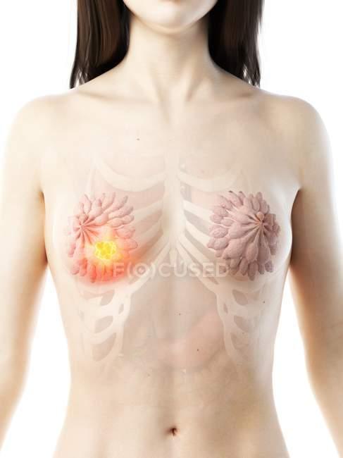 Cuerpo femenino abstracto con cáncer de mama brillante, ilustración conceptual de computadora.. - foto de stock