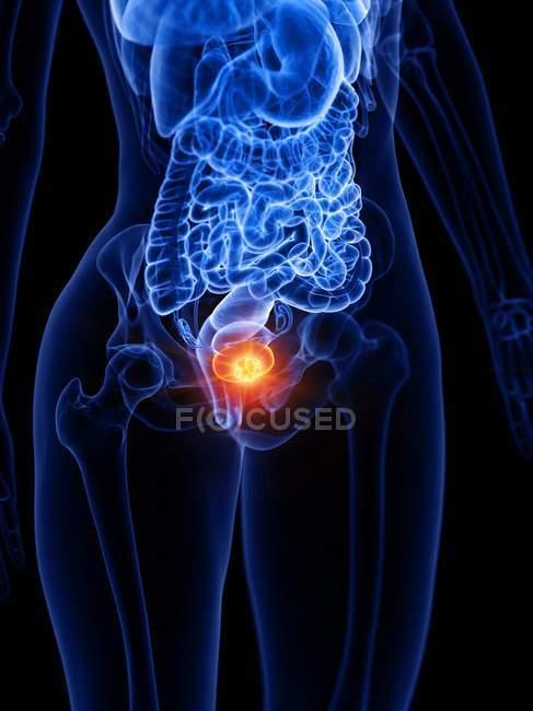 Blasenkrebs im menschlichen Körper Silhouette, konzeptionelle digitale Illustration. — Stockfoto