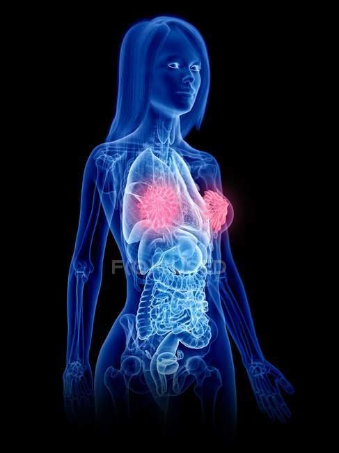 Silueta femenina que muestra la anatomía del pecho, ilustración por computadora . - foto de stock