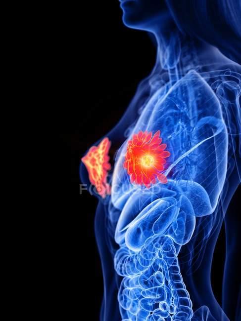 Corps abstrait féminin avec cancer du sein éclatant, illustration conceptuelle par ordinateur . — Photo de stock