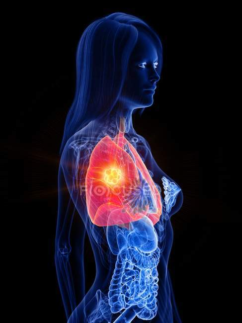 Lung cancer in female transparent body, conceptual computer illustration. — Stock Photo