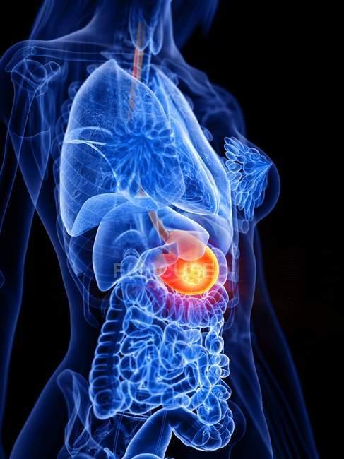Cancer de l'estomac dans le corps féminin, illustration conceptuelle par ordinateur . — Photo de stock
