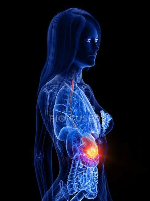Stomach cancer in female body, conceptual computer illustration. — Stock Photo