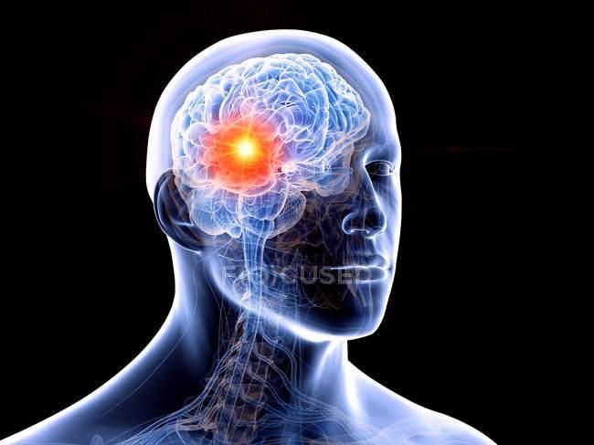 Tumor cerebral en el cuerpo humano, ilustración conceptual por computadora . - foto de stock