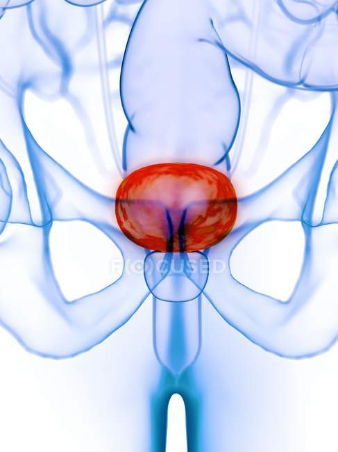 Diseased bladder in abstract human body, conceptual digital illustration. — Stock Photo