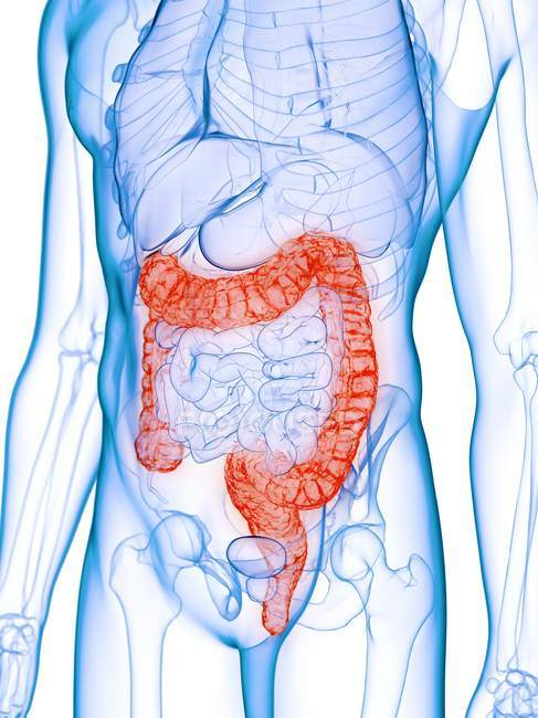 Male body with diseased colon, computer illustration. — Stock Photo