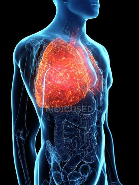 Diseased lungs in transparent male body on black background, computer illustration. — Stock Photo