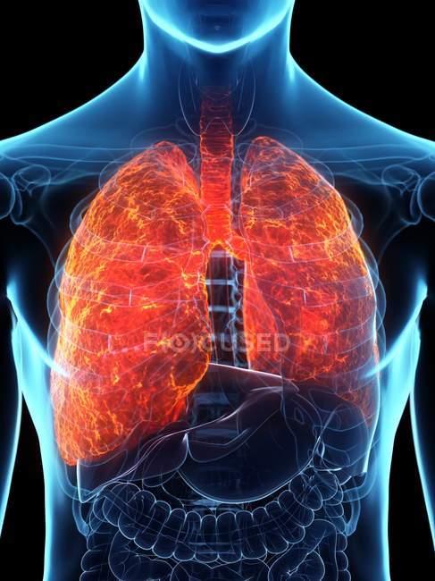Poumons malades dans un corps masculin transparent sur fond noir, illustration par ordinateur . — Photo de stock