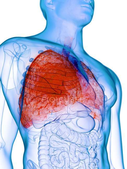 Diseased lungs in transparent male body on white background, computer illustration. — Stock Photo
