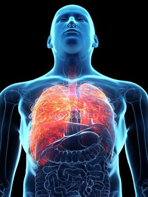 Pulmões doentes em corpo masculino transparente sobre fundo preto, ilustração do computador . — Fotografia de Stock