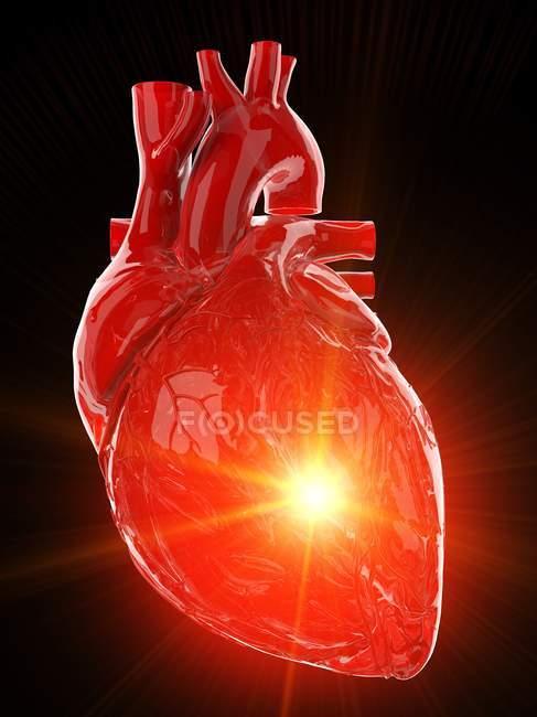 Corazón humano con enfermedad, ilustración por computadora . - foto de stock