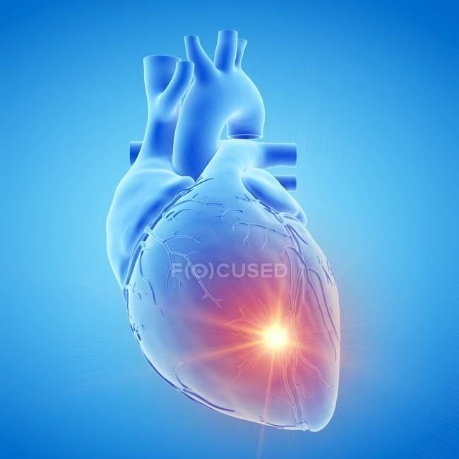 Cuore umano con malattia, illustrazione al computer . — Foto stock