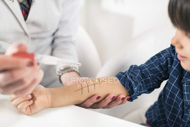 Hands of doctor performing allergy skin prick test on little boy arm. — Stock Photo