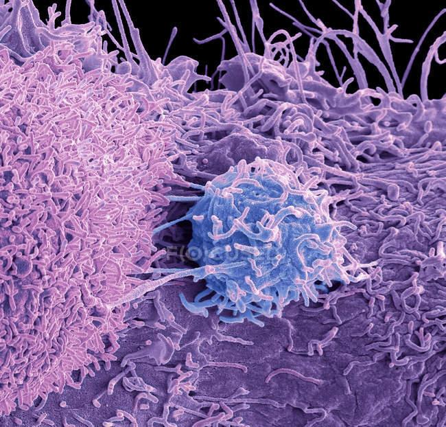 Кольоровий скануючий електронний мікрограф поверхні ракових клітин простати.. — стокове фото