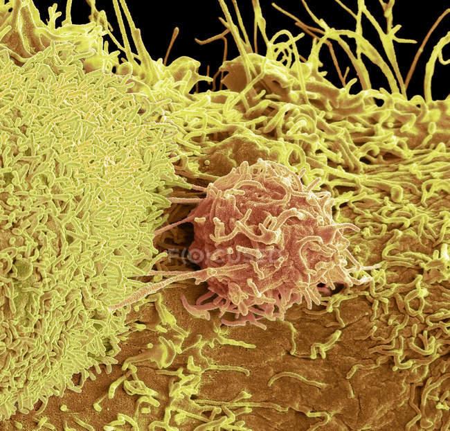 Micrografo elettronico a scansione colorata della superficie delle cellule tumorali della prostata . — Foto stock